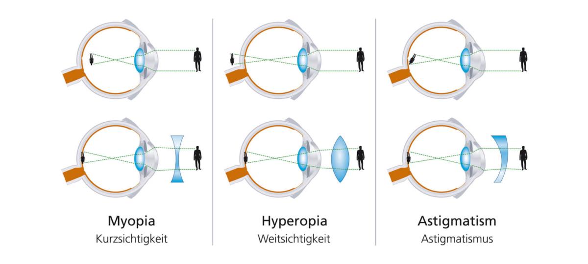 Strebel Optik Sehstoerungen